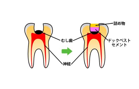 歯の神経を極力残す治療法